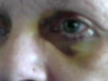 My poor little eye